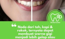 Cara Alami Membuat Gigi Putih dan Sehat